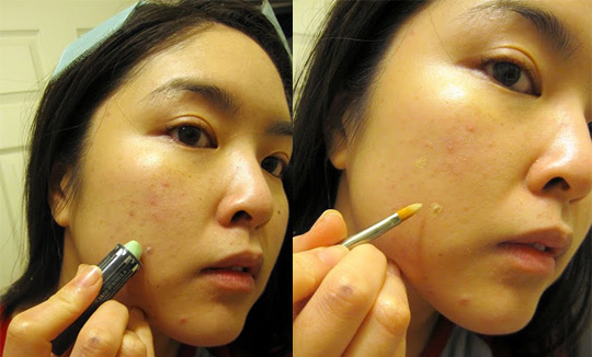 Makeup For Acne Scars – The Perfect Way