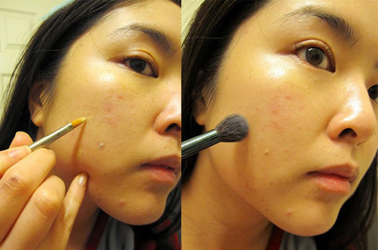 How To Cover Pimples and Scars with a Combination of Concealers ...