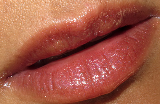 Allergic Reaction, Swollen Lips | LIVESTRONG.COM