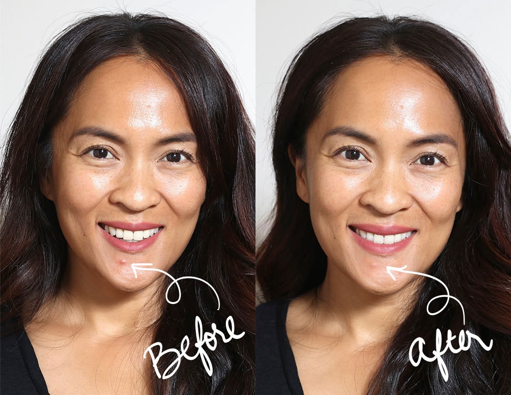 karen it cosmetics before after blemish