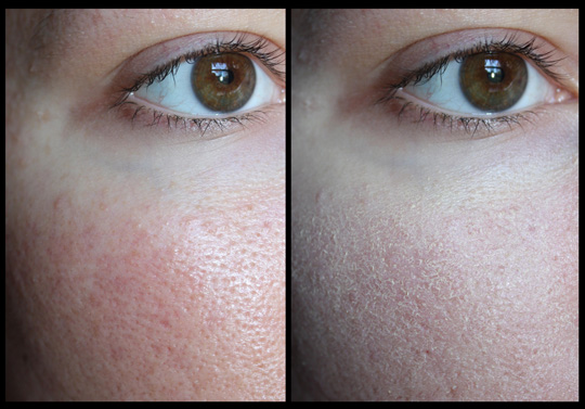 A Look At Two Products From The Clinique Redness Solutions