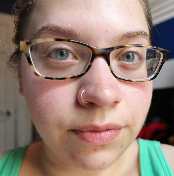 acne, acne awareness,