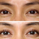 rodan fields enhancements lash boost before after